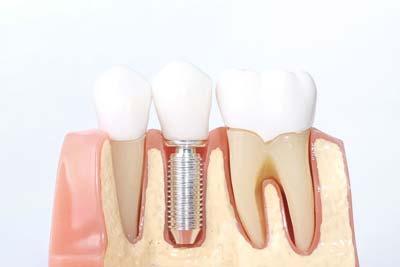 Alphington dental implant specialist