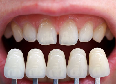 dental veneers alphington