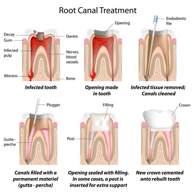 alphington root canal dentist