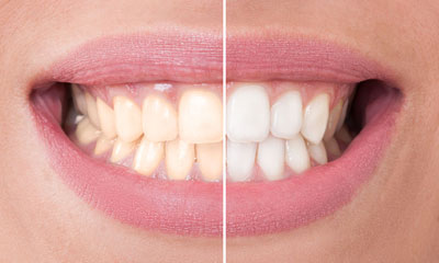 Alphington Teeth Whitening Dentist