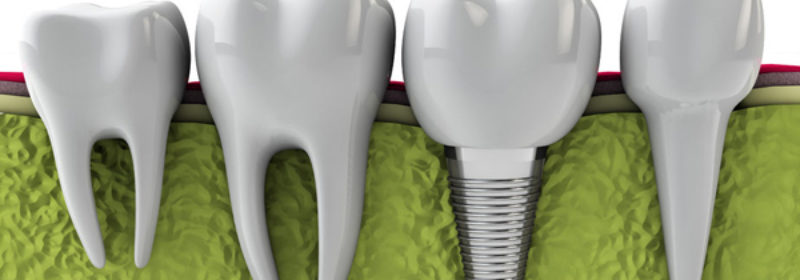 Are Dental Implants Used In Cosmetic Dentistry Treatment?