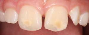 Molar Incisor Hypomineralisation