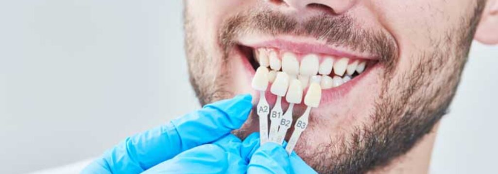 What to do if your porcelain veneers fall off