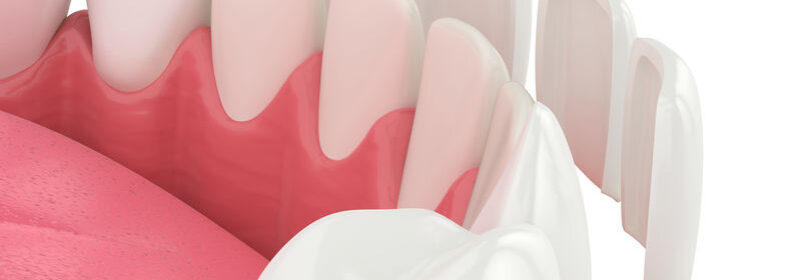 What causes veneers to fall out of your mouth and how to manage