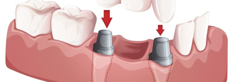 Can Dental Implants Fall Off and What to Do If That Happens